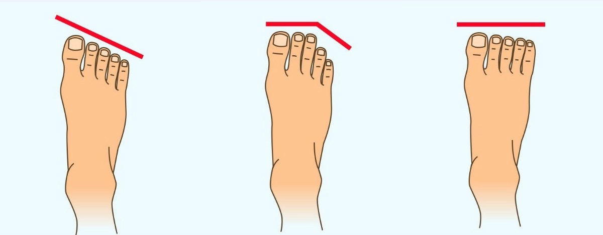 Каков ви е карактерот според формата на стапалото